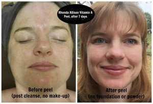 Rhonda Allison Vitamin A Peel Before and After