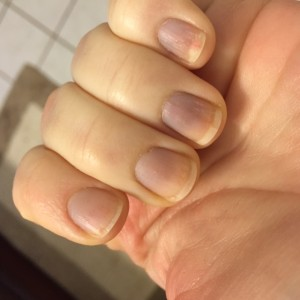 Nails may turn blue during an episode and over time,  nails might develop ridges related to Raynaud's.
