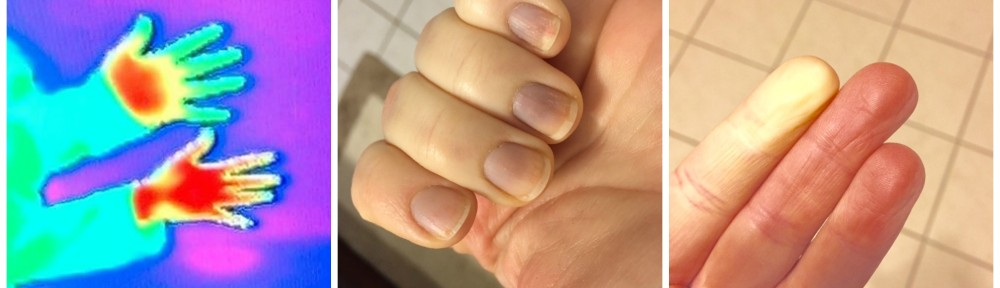 Can spa services offer benefits for Raynaud's Disease?