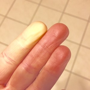 "My typical post cool weather run ""trick"" when a couple of my fingers turn white and go completely numb."""